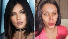 Fãs acusam Flavia Pavanelli de exagero em procedimento estético