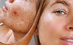 Na era do confinamento e da exposição nas redes sociais, um novo símbolo de status chama atenção: a pele