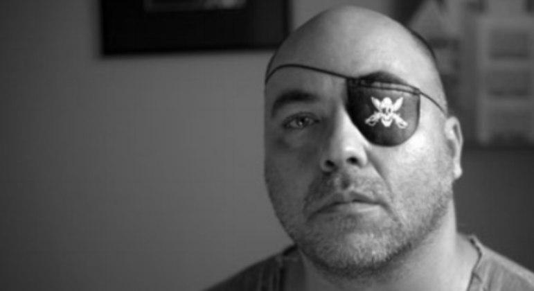 O fotógrafo Alex Silveira perdeu a visão do olho esquerdo após ser atingido por uma bala de borracha