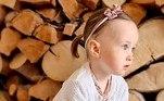 A pequenaWillow Dodding, do Reino Unido, nasceu com uma rara condição que obrigou seus paisCharlotte e James a tomarem uma decisão muito difícil: autorizar a amputação do pé da menina