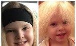 Lyla Grace Barlow nasceu com a Síndromedo Cabelo Indomável, uma condição que deixa os fios com crescimento mais lento e desordenado. A menina, que atualmente tem 9 anos, conseguiu pela primeira vez pentear as madeixas e domar o visual arrepiado. Veja