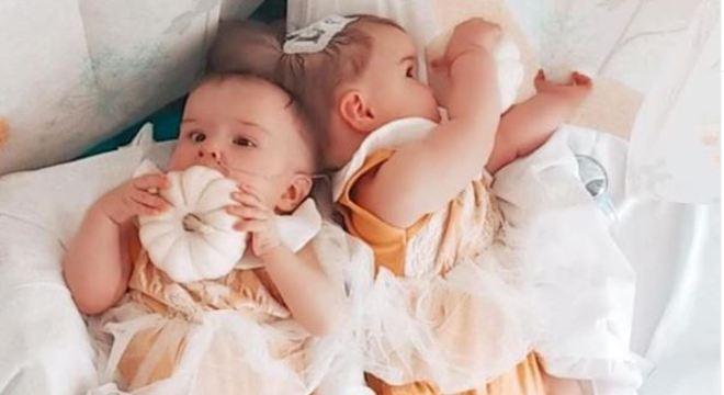 Irmãs nasceram grudadas, porém hoje estão separadas e sem problemas