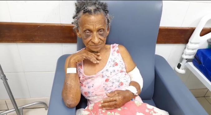 Geralda teve apenas ferimentos leves