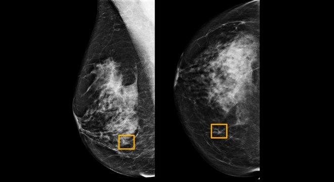 Radiologistas tendem a não detectar cerca de 20% dos casos de câncer de mama