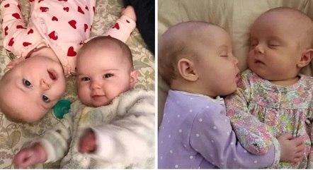 Mesmo com a gravidade da doença, os médicos afirmaram que a bebê está apenas um mês atrasada em relação ao desenvolvimento da irmã