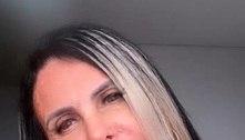 Gretchen exibe harmonização facial na web: 'Tudo bonito de novo'