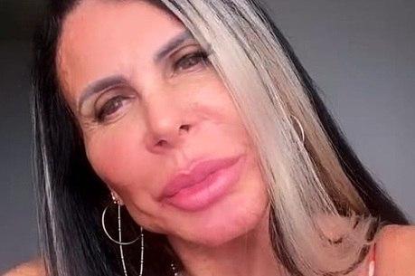 Cantora mostrou resultado em publicação nas redes sociais