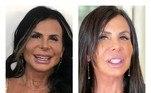Gretchen não esconde que é fã de harmonização facial. No final do ano passado, ela fez a manutenção do procedimento e rebateu