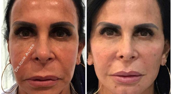 Gretchen mostrou antes e depois da harmonização facial