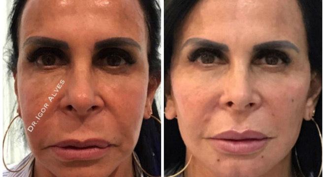 Gretchen mostra antes e depois do procedimento estético