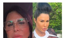 Gretchen é comparada a Gracyanne Barbosa após nova cirurgia plástica