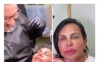 Gretchen faz procedimentos para colorir boca e mudar sobrancelhas
