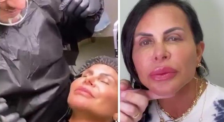 Gretchen se submeteu a procedimentos estéticos nos lábios e nas sobrancelhas