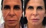 Harmonização facial: confira o