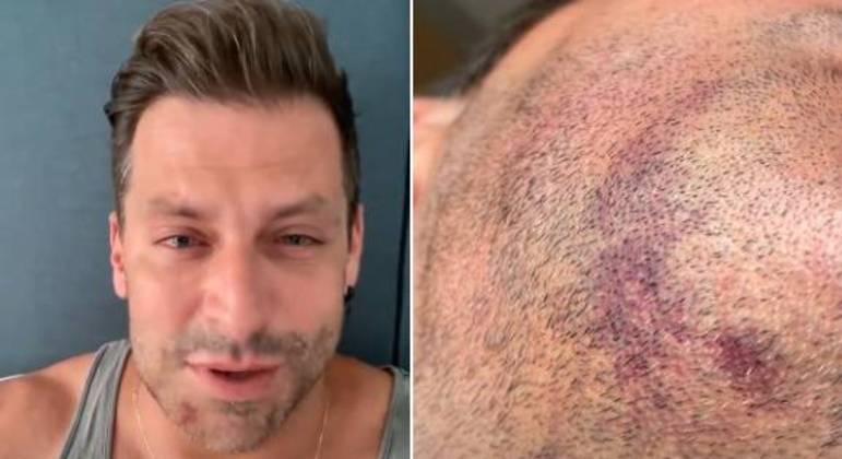 Castelli mostrou hematoma no rosto