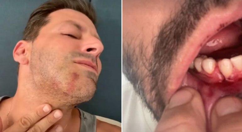 Ator passou por cirurgia na boca