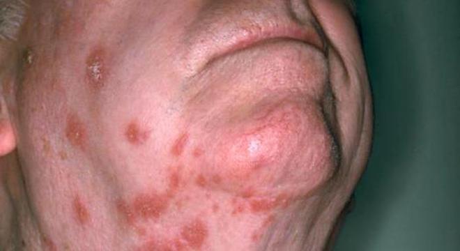 A herpes zoster se caracteriza por lesões avermelhadas seguidas de vesículas