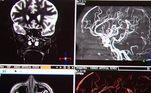 Já se sabe que a covid-19 pode interferir na coagulação sanguínea e até causar problemas neurológicos. Cientistas criaram o termo: neurocovid, para identificar complicações cerebrais em decorrência da infecção pelo coronavírus
