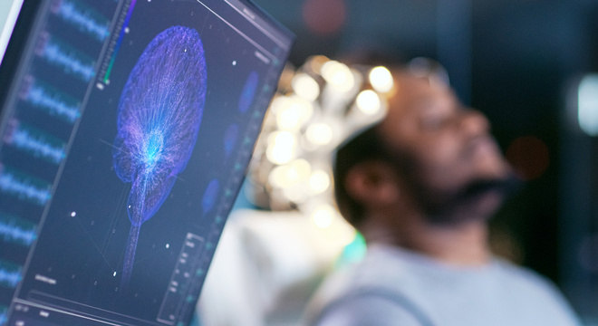 Graças às novas tecnologias médicas, hoje podemos ver como o cérebro funciona