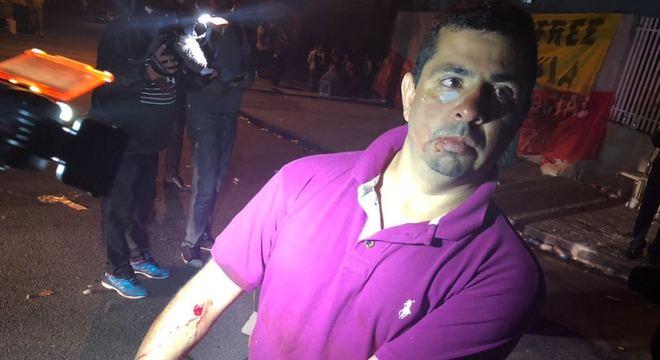 Marcio Alexandre Souza, 37 anos, foi ferido por uma balada de borracha