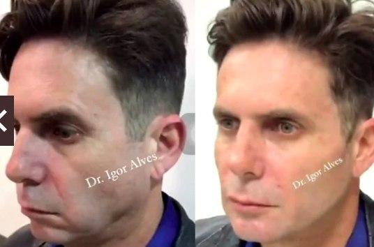 Hudson Cadorini se rendeu à harmonização facial