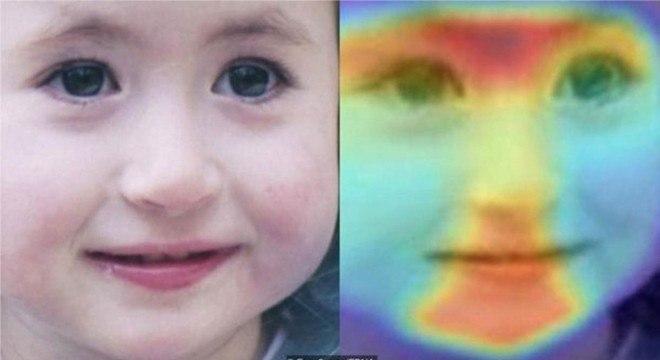 Nossas características faciais podem dar informações sutis sobre certas doenças genéticas raras, as quais computadores estão ajudando médicos a identificar