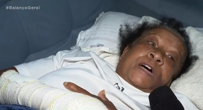 Aposentada ficou internada e teve várias fraturas pelo corpo