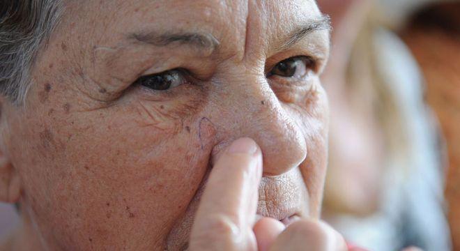 Uso contínuo do medicamento aumenta risco de câncer de pele