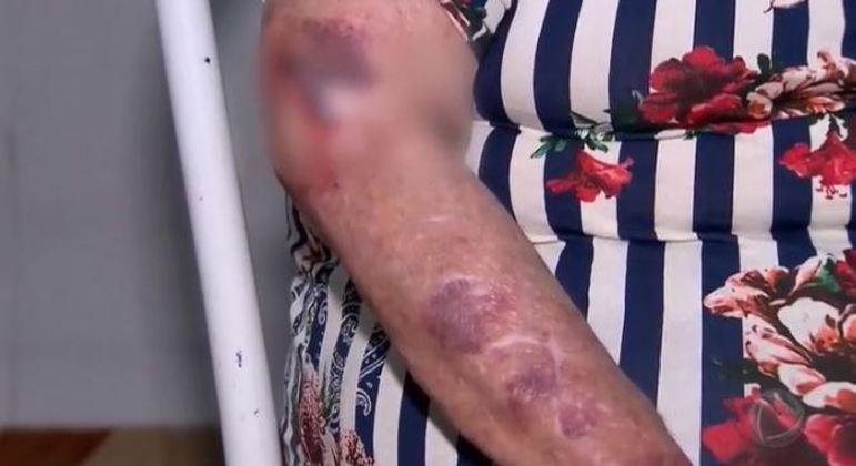Nem sempre a violência deixa marcas nos idosos, mas há casos com hematomas