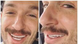 Diego Hypolito faz preenchimento labial: 'Quero boca igual à da Anitta' (Fotos de Reprodução/Instagram)