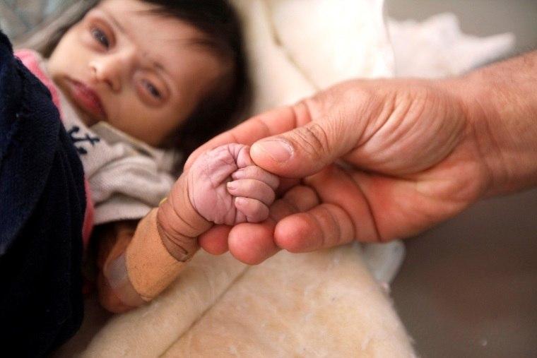 Guerra do Iêmen deixa 11 milhões de crianças ameaçadas pela fome