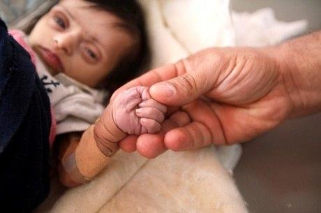 Fome atinge cerca de 11 milhões de crianças