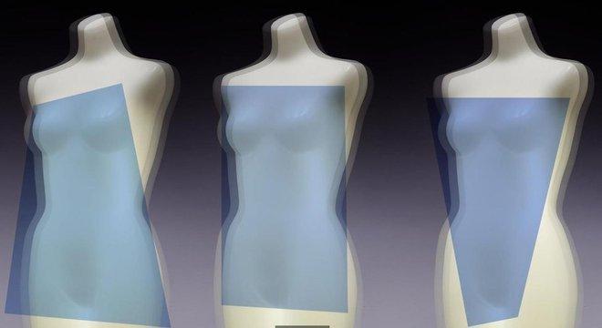 Alterar o equilíbrio hormonal da mulher pode mudar a região em que a gordura é localizada