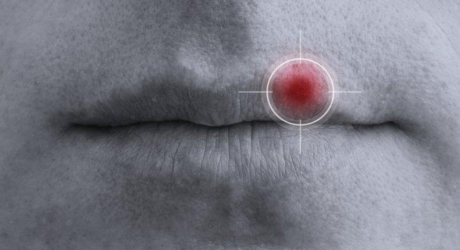 O vírus da herpes tipo 1 é mais conhecido por causar a herpes labial