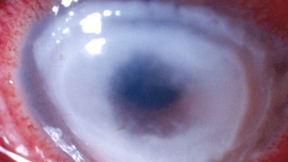 35df4bf879484 Infecção em usuários de lente de contato pode causar cegueira e até perda  do globo ocular - Notícias - R7 Saúde