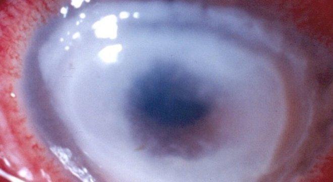 Imagem de paciente que teve os dois olhos acometidos por doença e ficou completamente cego Causas e números