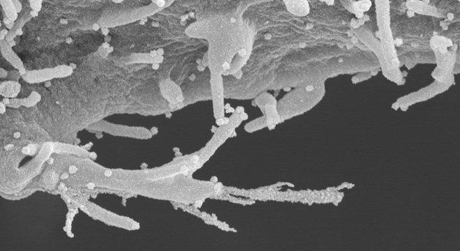 As imagens reveladas pelo estudo mostram células humanas infectadas com um detalhamento inédito