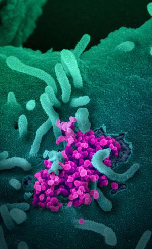 Resíduos bacterianos são associados ao agravamento da doença