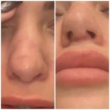 A jovem de 29 anos agora está em uma corrida contra o tempo para consertar o estrago e disse que seu nariz inchou muito antes de apodrecer por dentro