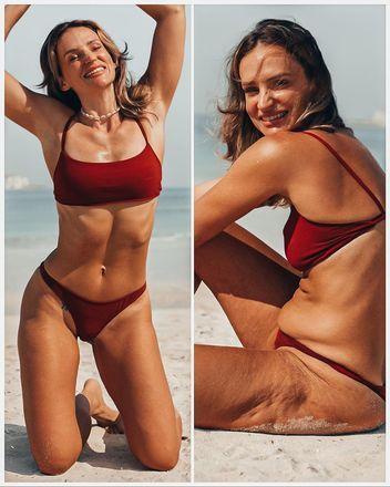 A influenciadora travou uma longa batalha contra os distúrbios alimentares e, através das postagens, tenta incentivar outras pessoas a amarem seus corpos como eles são