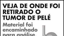 Pelé está bem, mas segue internado em UTI em São Paulo