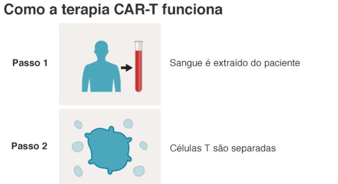 infografico explica como funciona o CAR-T