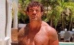 Quase um Incrível Hulk! Os braços deste homem ficaram totalmente desiguais e visivelmente modificados