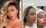 Ao longo dos últimos anos, Rafaella também passou por uma verdadeira transformação no visual. Em julho, por meio de publicação nas redes sociais, ela mostrou que se submeteu a uma remodelação do rosto.