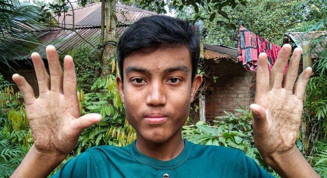 Irmão mais novo de Apu Sarker, Anu, também herdou a rara mutação genética