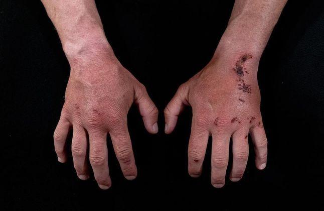Lutador de MMA ou triatleta? Olha o resultado das mãos dele após as atividades
