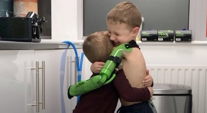 Ben Ryan Jacob abraçou o irmão depois que recebeu a prótese