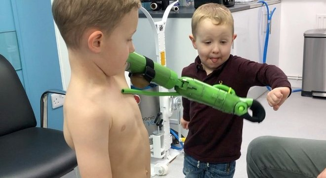 O novo braço de Jacob é inspirado em super-heróis