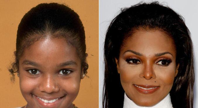 Janet Jackson é outra que fez várias cirurgias