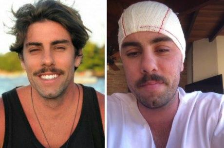 João Vitor celebrou sucesso da cirurgia na cabeça
